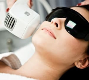 Laser hair removal on full face treatment